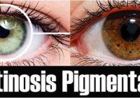 que es la retinosis pigmentaria bilateral