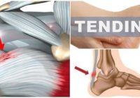 como ocurre la tendinitis en el pie