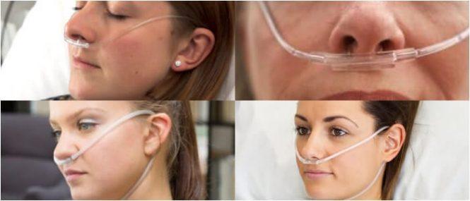 canula nasal de alto flujo