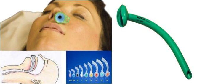 caracteristicas de la canula nasofaringea