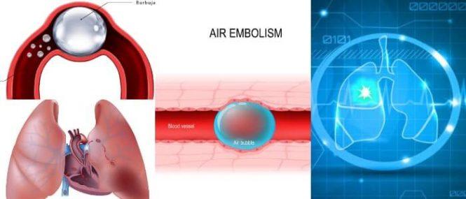 que es la embolia gaseosa arterial