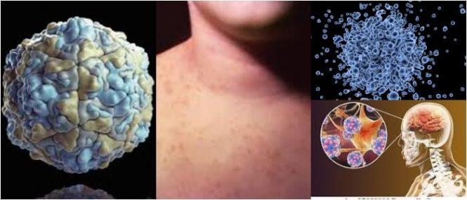 que son las enfermedades por echovirus