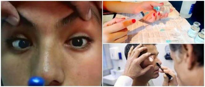 oftalmoplejia