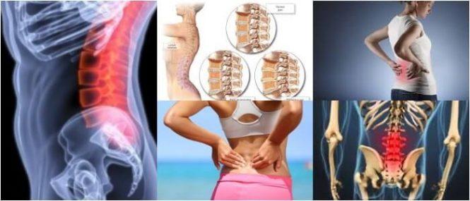 osteoartritis lumbar