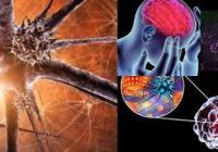 encefalitis aséptica