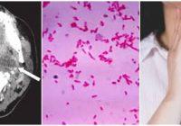 infección orofaríngea anaeróbica aguda