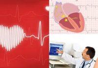 contracciones ventriculares prematuras