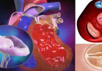 regurgitacion aortica