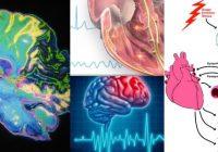 disritmia cerebral
