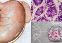 células oxinticas