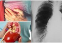 aorta elongada
