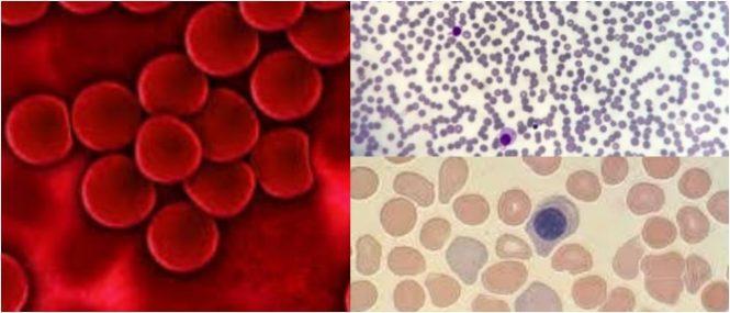 reticulocitos